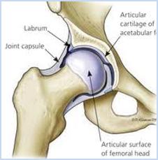 - Csípőízületi artroszkópia (ízületi tükrözés)